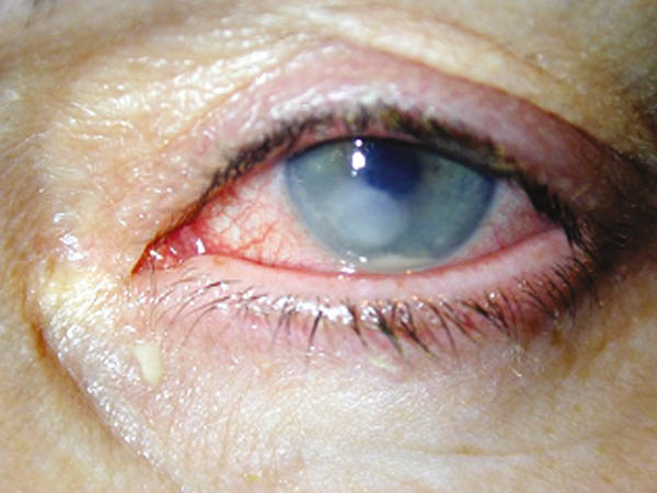 cuidado ocular